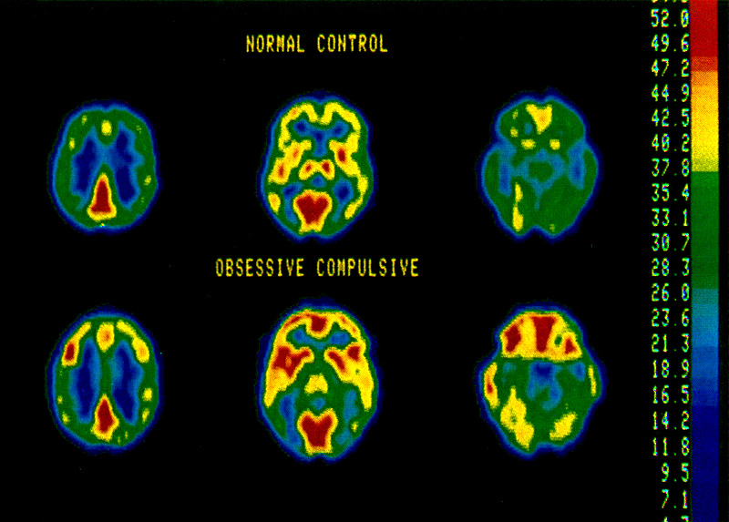 PET scan of increased OCD brain activity. Baxter et al (1987) ARCH GEN PSYCH 44